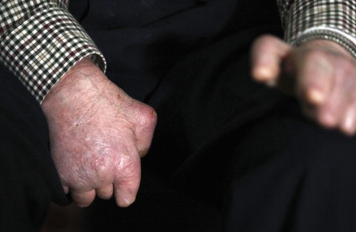 As marcas deixadas pela lepra são bem visíveis nas mãos do senhor Abel, um dos 21 antigos leprosos que reside no Rovisco Pais onde funciona o Serviço de Hansenianos em Vigilância, 30 janeiro de 2010. (ACOMPANHA TEXTO) PAULO NOVAIS/LUSA